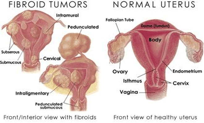 Discover The Truth About Fibroids And Infertility Every Woman Should Know
